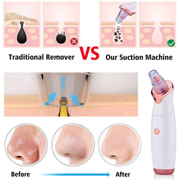 Acne Pimple Blackhead Remover Deep Cleaner for Face T Zone and Nose Vacuum Suction Machine Facial Beauty_16