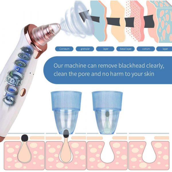 Acne Pimple Blackhead Remover Deep Cleaner for Face T Zone and Nose Vacuum Suction Machine Facial Beauty_12