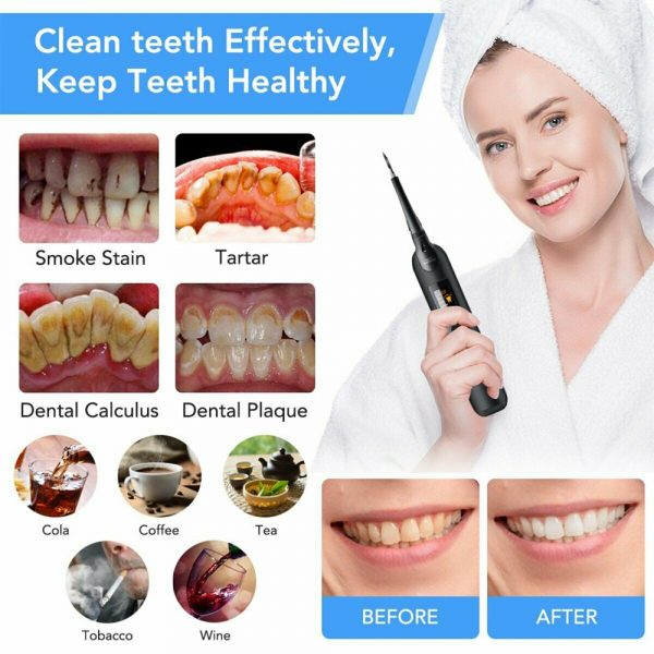 USB Rechargeable Electric Dental Calculus Tooth Cleaner with LED HD Screen_4