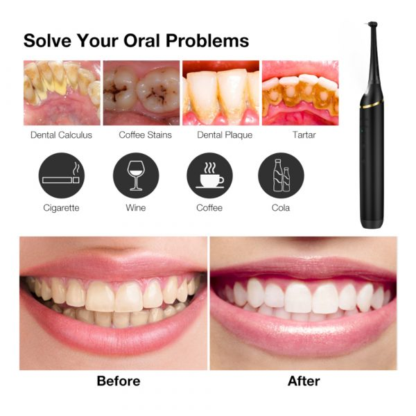 USB Rechargeable Electric Dental Calculus Tooth Cleaner with LED HD Screen_9