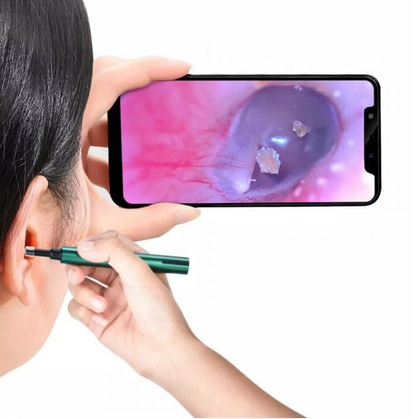 WI-FI Enabled HD Wireless Otoscope Earwax Remover Visual Ear Cleaner_0
