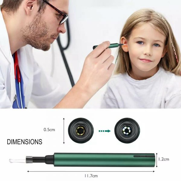 WI-FI Enabled HD Wireless Otoscope Earwax Remover Visual Ear Cleaner_5